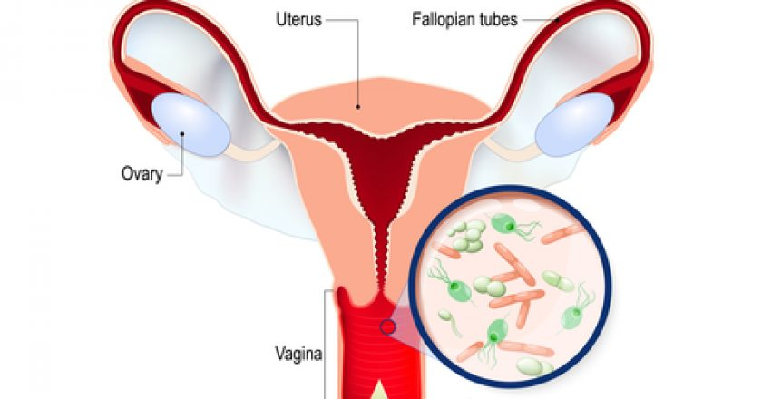 Vaginal infection and causative agents of vulvovaginitis.