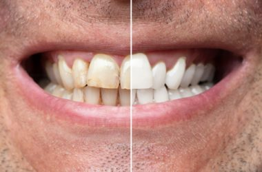 Man Teeth Before And After Whitening | © Andrey Popov | Dreamstime Stock Photos