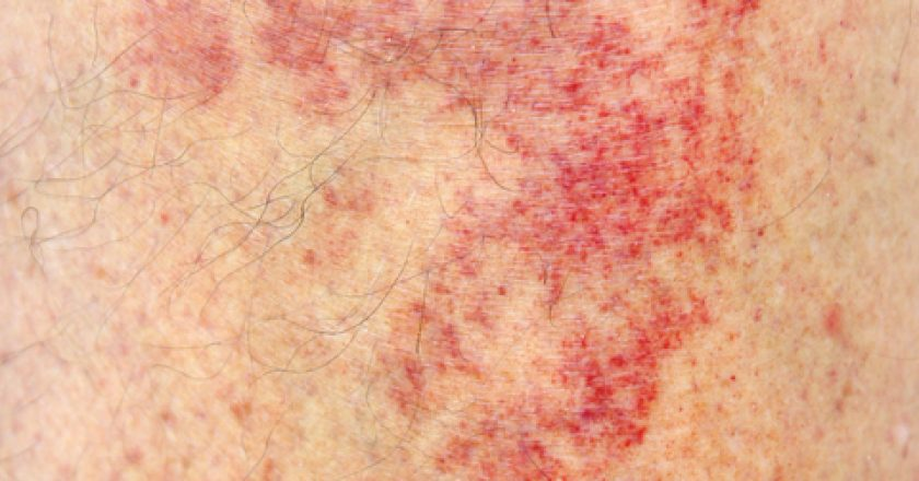 Allergic contact dermatitis at shin | © Vnikitenko | Dreamstime Stock Photos