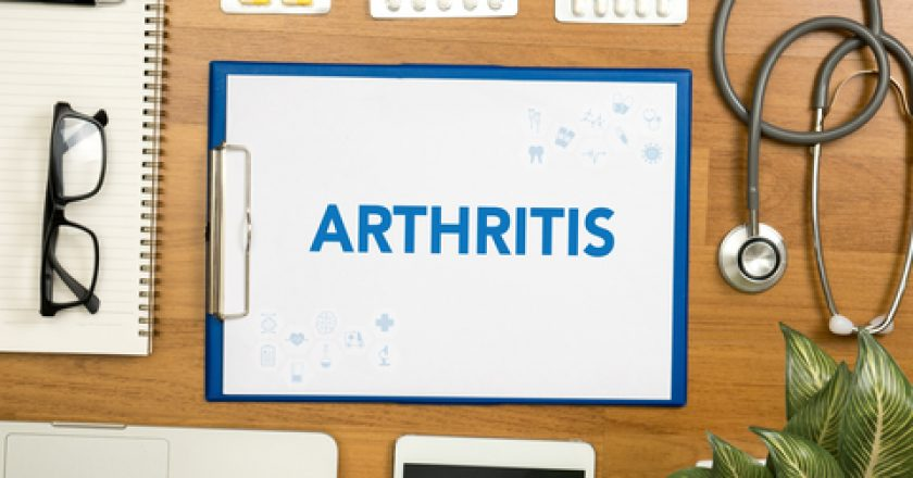 ARTHRITIS | © One Photo | Dreamstime Stock Photos