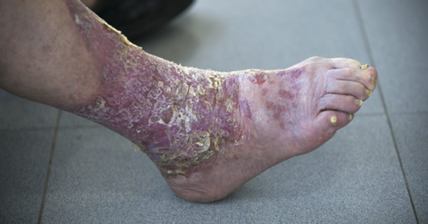 Psoriasis in the foot
