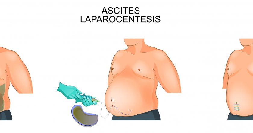 A man suffering from ascites. Laparocentesis