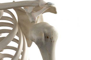 a dislocated shoulder
