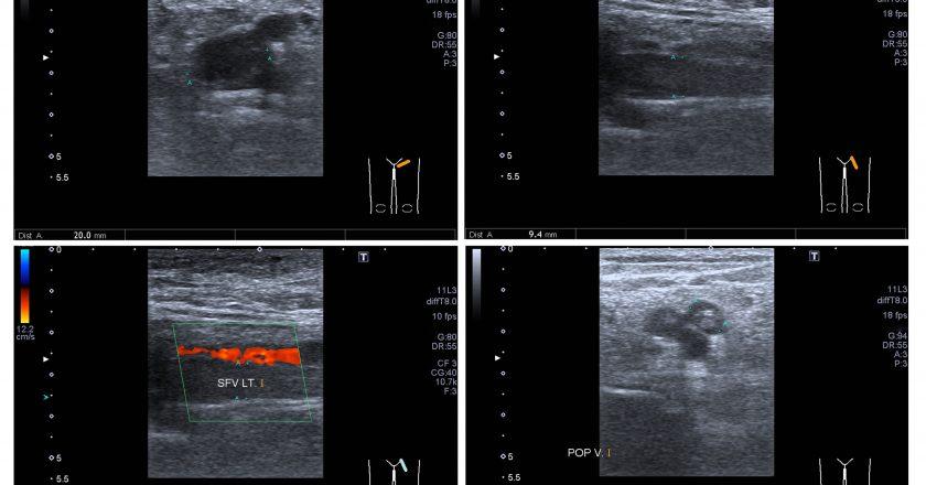 Ultrasound color doppler both leg.