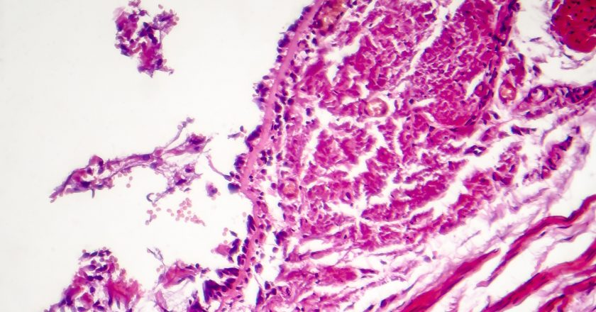 Chronic bronchitis under microscope
