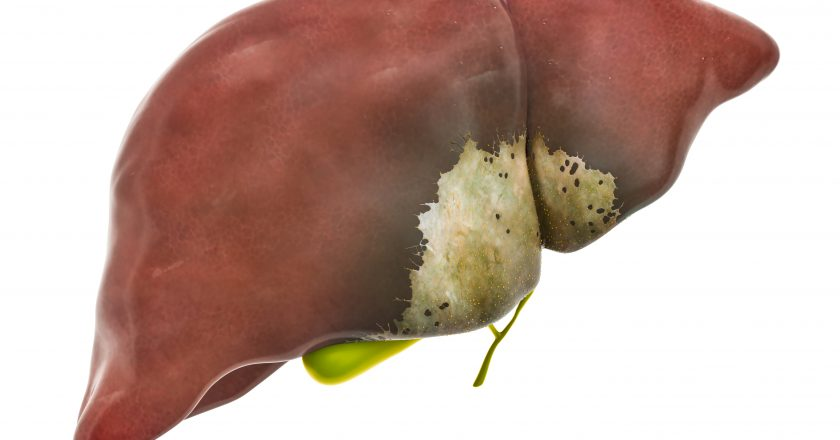 Liver or gallbladder disease concept, 3D rendering