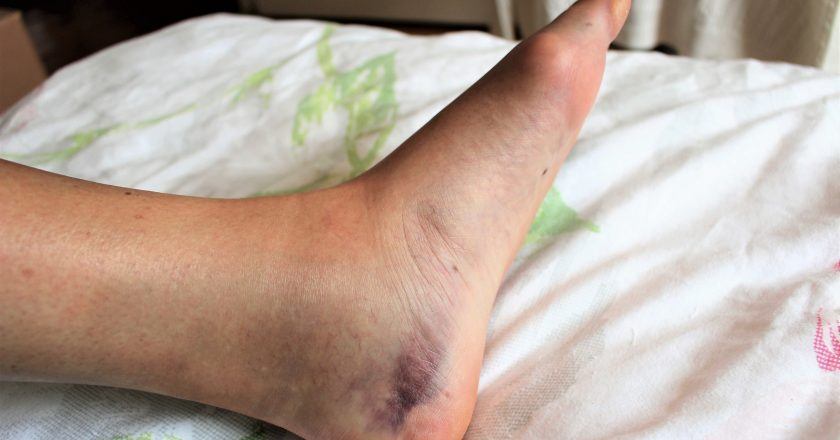 A blue and swollen foot with ankle fracture