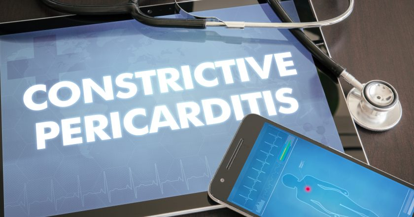 Constrictive pericarditis (heart disorder) diagnosis medical con