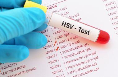 Herpes simplex virus test