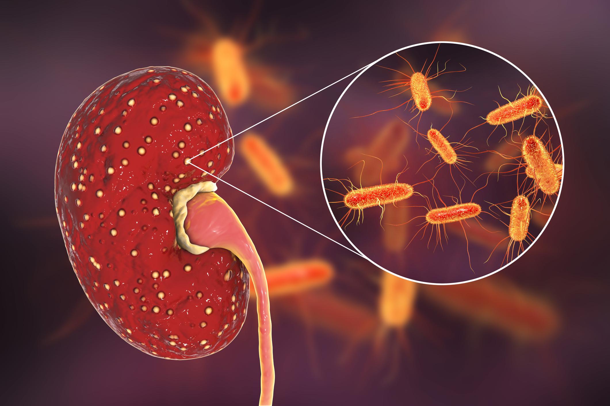Οξεία νεφρίτιδα
