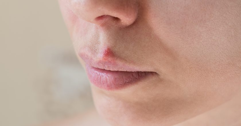 Cold sores. Close-up of the female face.