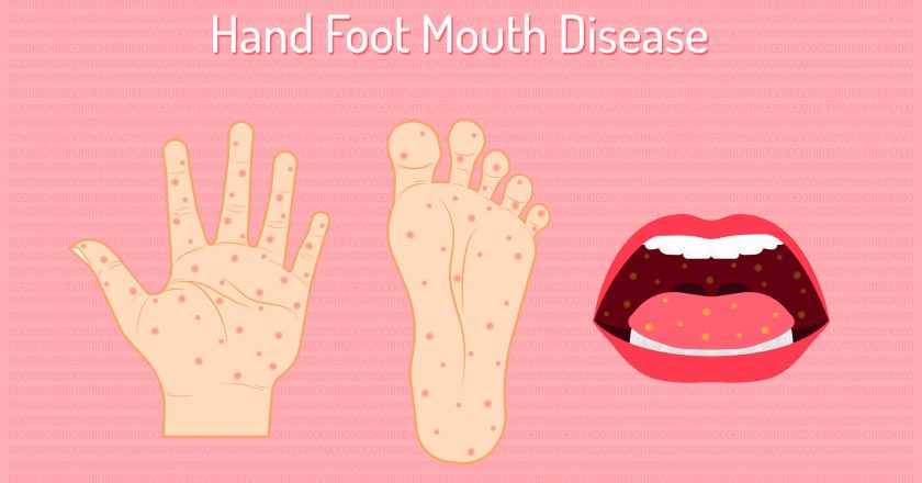 hand foot mouth disease. enteroviruses or EV71 is name of virus. be careful of your chidren and yourself. beautiful color