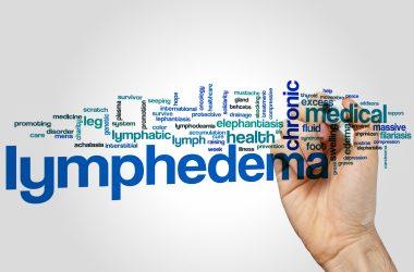 Lymphedema word cloud