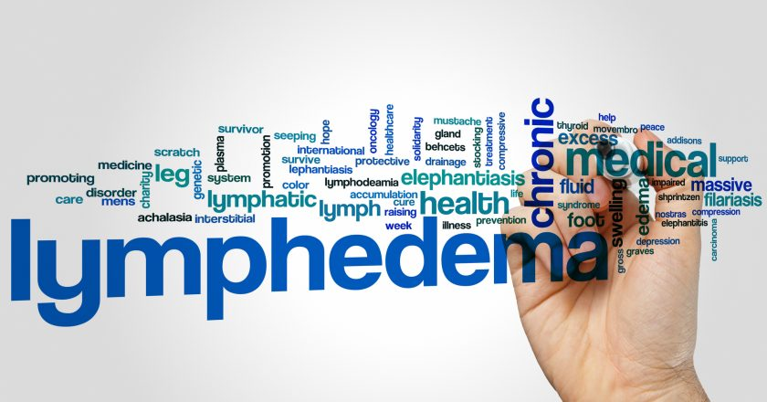 Lymphedema word cloud