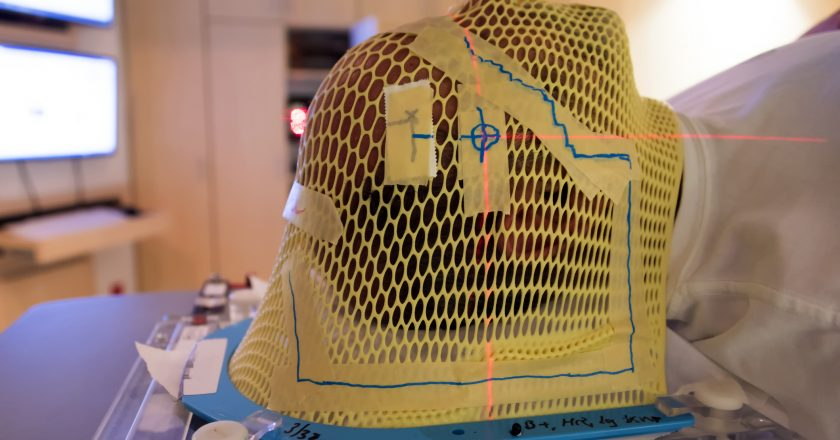 Radiation Therapy Mask