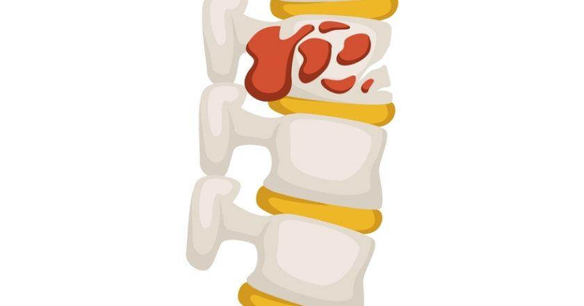 Bone tumor skeleton disease or cancer medicine