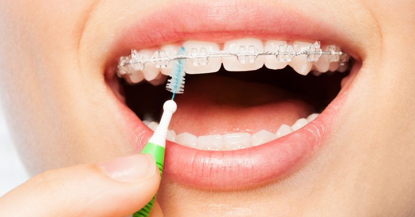 Female mouth with braces and interdental brush