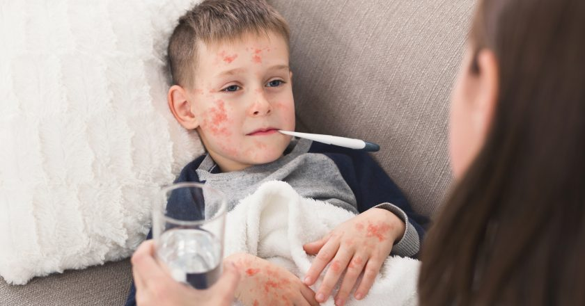 Child Boy With Measles Measuring Temperature, Lying on Sofa