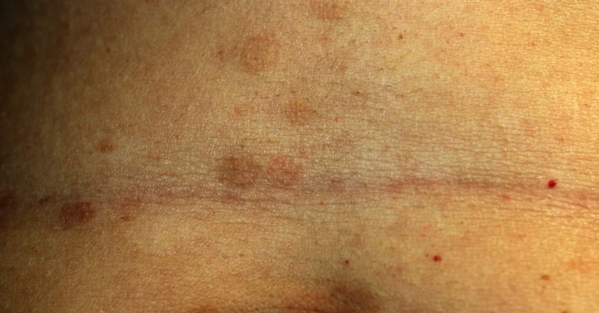 Red Flat Lichen planus. Red spots on the skin of the abdomen