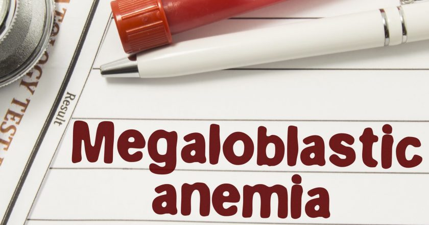 Diagnosis of Megaloblastic Anemia. Test tubes or bottles for blood, stethoscope and laboratory hematology analysis surrounded by t