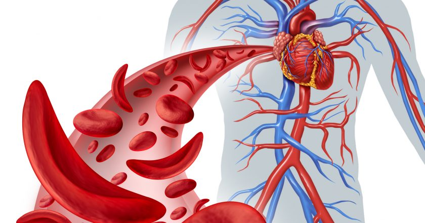 Sickle Cell Heart Circulation