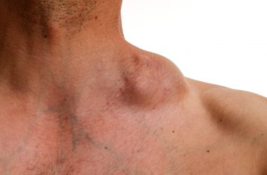 Hodgkin tumor - Bulky tumour - Hodgkin lymphoma