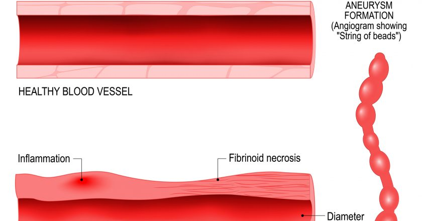 Vasculitis is damange of blood vessels by inflammation.
