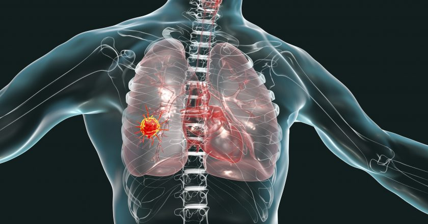 Lung cancer, conceptual image