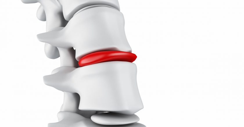 3d Herniated disk concept