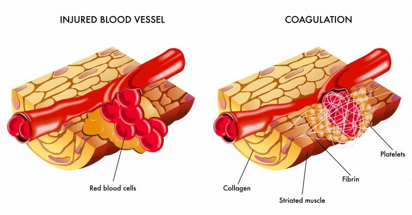 Blood coagulation | Πήξη αίματος