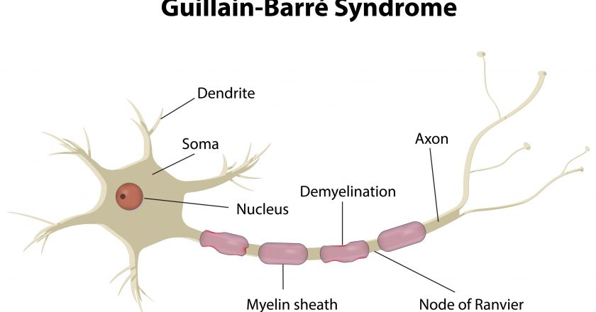 Guillain Barre Disease
