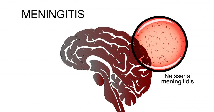 Brain, meningitis, the causative agent of meningitis