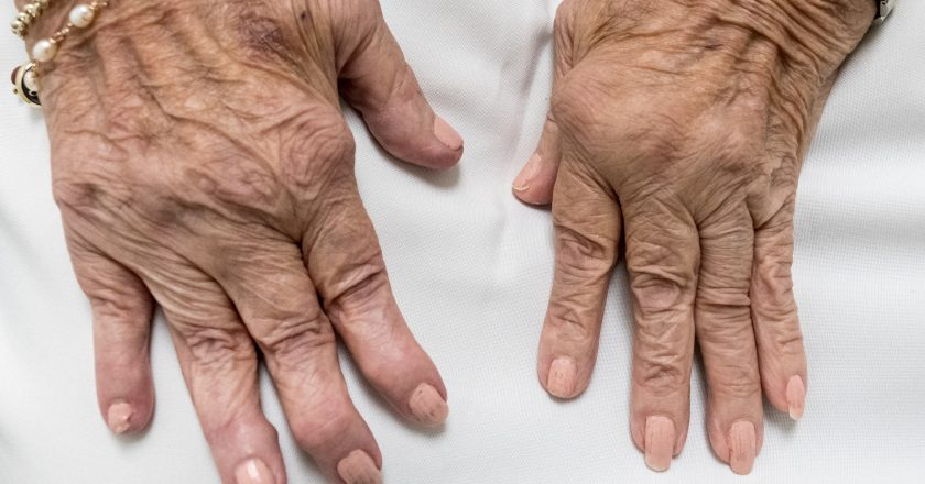 Rheumatoid Arthritis, Senior Hands