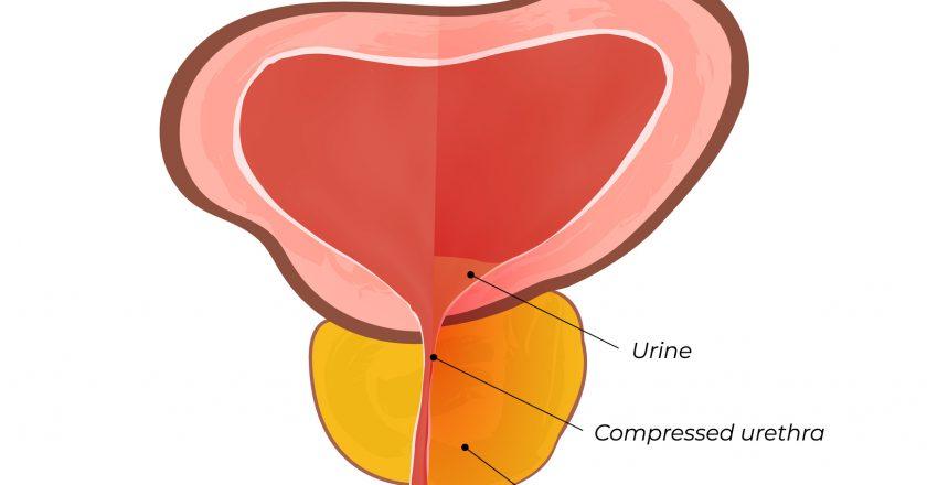 Normal and inflamed prostate gland | Χρόνια προστατίτιδα