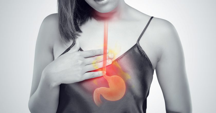 Acid Reflux Or Heartburn
