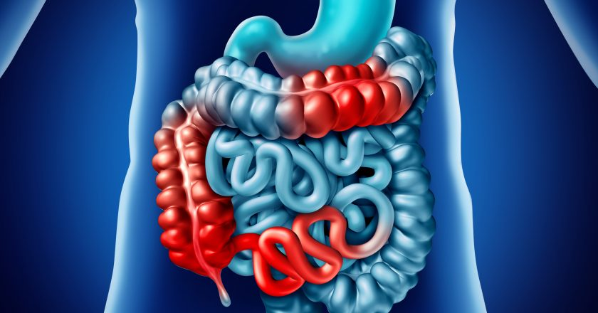 Crohn Disease And Digestion illness