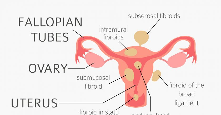 Uterine fibroids. Ginecological medical desease in women infographic
