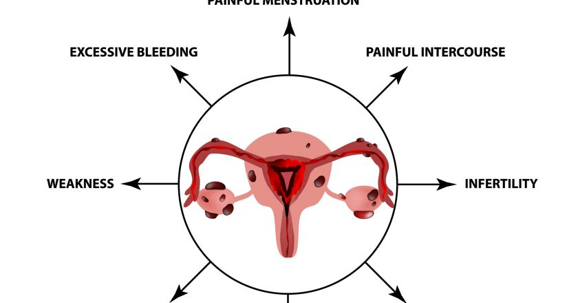 Symptoms of endometriosis. The uterus ovaries structure. Infographics. Vector illustration on isolated background