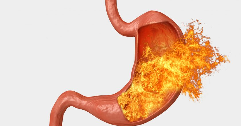 Stomach fire. excessive acidity, indigestion, stomach disease, gastric ulcer, severe abdominal pain