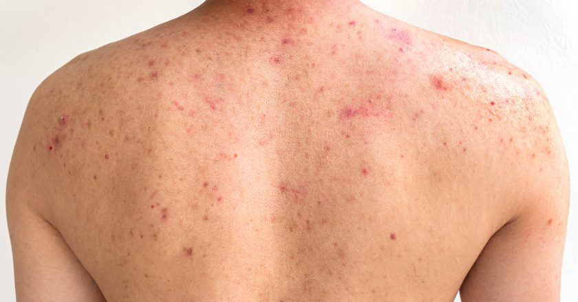Men with acne, with red spots on the back |