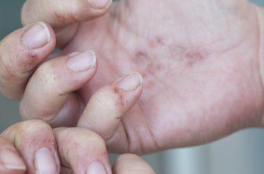 Dermatitis in hands |