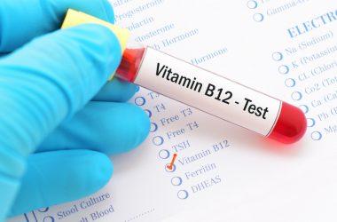 Vitamin B12 test | © Jarun011 | Dreamstime Stock Photos