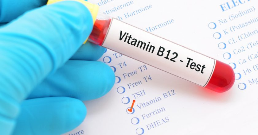 Vitamin B12 test | © Jarun011 | Dreamstime Stock Photos