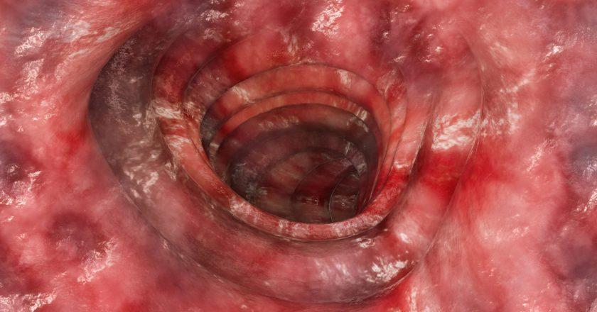 Colitis ulcerosa - Stage 4 - 3D rendering