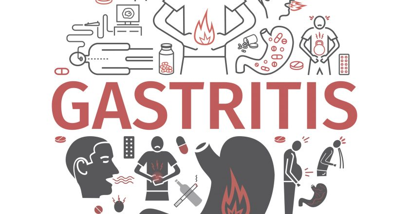 Gastritis banner. Heartburn, Symptoms, Treatment. Line icons set. Vector signs for web graphics.
