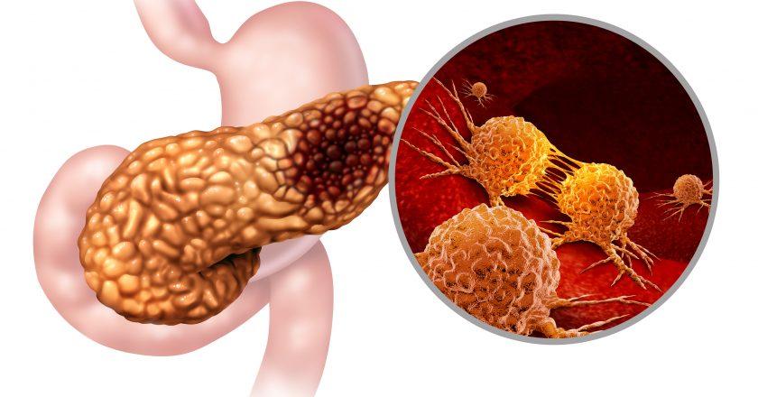 Pancreatic Cancer Anatomy