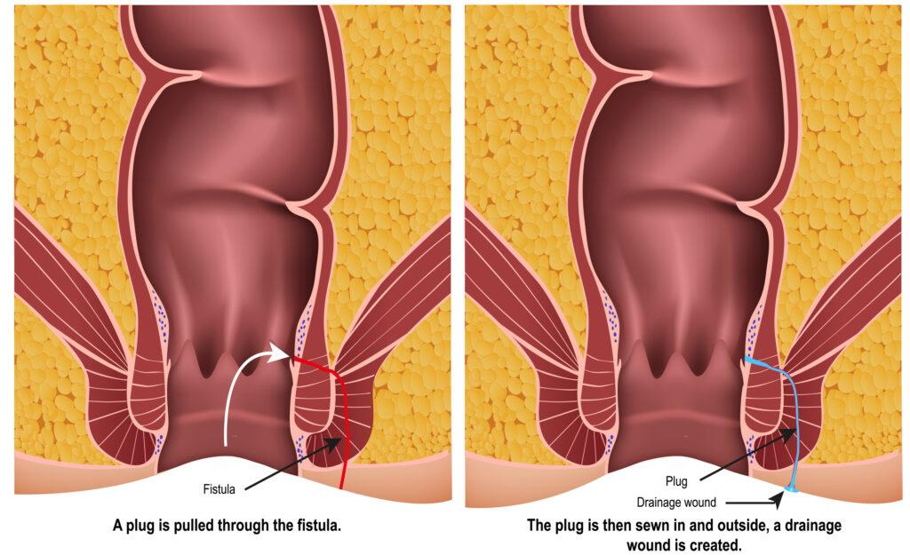 Fistula plug medical illustration on white background with description