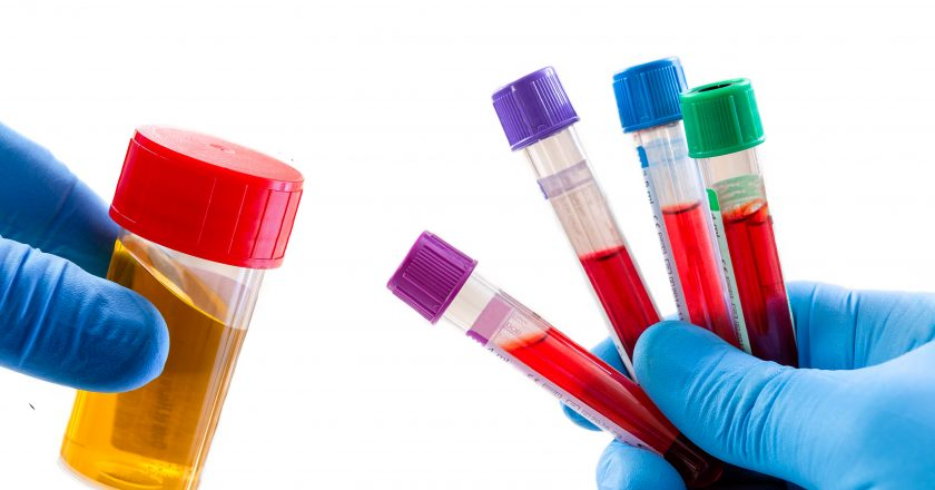 Doctor`s holds blood sample and urine sample: for test and analysis on white background