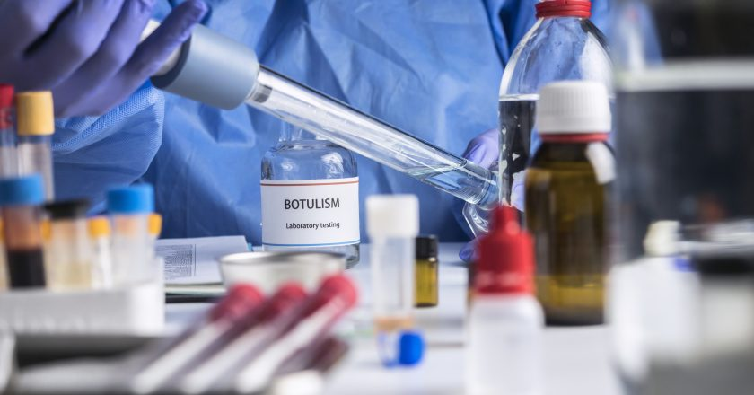 Specialist analyzes botulism Samples in laboratory