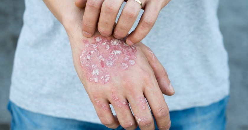 Man scratch oneself, dry flaky skin on hand with psoriasis vulgaris, eczema and other skin conditions like fungus, plaque, rash an |